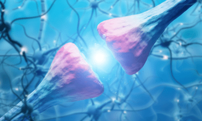 Parkinson's Disease: A close up of the neurons affected by parkinsons disease in blue and pink
